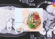 뇌종양 재발 위치 따라 변이…맞춤형 치료 길 열리나